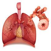 астма — Cтоковый вектор