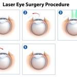 Laser Eye Surgery Procedure — Stock Vector #26395171