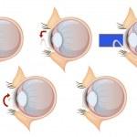 Laser eye correction — Stock Vector #26395177