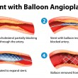 Stent angioplasty procedure — Vector de stock