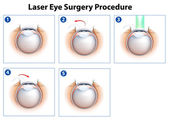 Laser Eye Surgery Procedure — Stockvektor