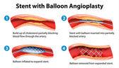 Stent angioplasty procedure — Stock Vector