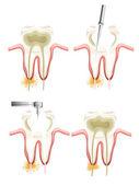 Procedimiento de endodoncia — Vector de stock