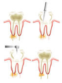 Root canal procedure — Vector de stock