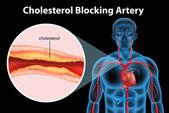 Ateriosclerosis — Stock Vector