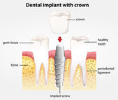 Dental implant with crown — Stock Vector