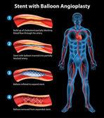Stent anjiyoplasti işlemi — Stok Vektör