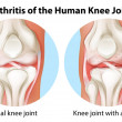 Arthritis of the human knee joint — Stockvectorbeeld