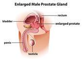 Erweiterten männlichen prostata — Stockvektor