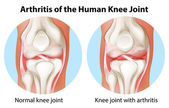 Arthritis of the human knee joint — Stock Vector