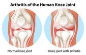 Arthritis of the human knee joint — Stock Vector
