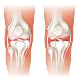 Human knee arthritis — Stock Vector