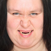 Portrait an ugly woman with missing teeth. — Stockfoto