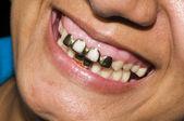Dentisty maïs natif de dents en or island nicaragua — Photo