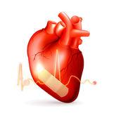 Damaged heart — Stock Vector