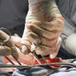 surgical operation — Stock Photo