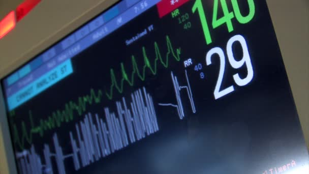 Un corazón estación de supervisión. — Vídeo de stock