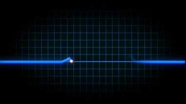 An animated heart monitor EKG flatlines. — Stock Video