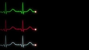 Three EKG,ECG traces — Stock Video