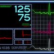 Stock Video: Fictional hospital computer screen monitoring humheart.