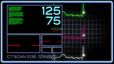 A fictional hospital computer screen monitoring a human heart. — Stock Video