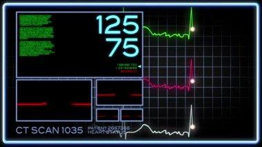 A fictional hospital computer screen monitoring a human heart. — Stock Video
