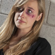 Stock Photo: Battered woman