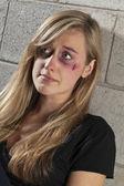 Battered woman — Stock Photo