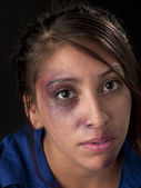 Portrait of a abused young woman — Stock Photo
