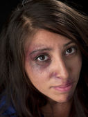Young woman with bruise on her face — Stock Photo