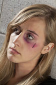 Woman with black eye and wound — Stock Photo