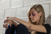 A battered woman with bruise — Stock Photo