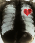 Broken heart on black x-ray film — Stock Photo