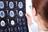 Female doctor examining a brain cat scan — Stock Photo