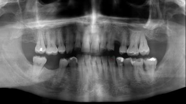 Dental panoramic facial x ray tooth pain ache — Stock Video