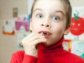 Junge mit fehlenden Zähnen — Stockfoto