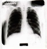 Fluorogram human lungs — Foto Stock
