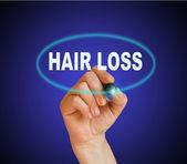 Koncepcja wypadanie włosów — Zdjęcie stockowe