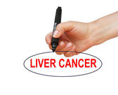 LIVER CANCER — Stock Photo
