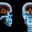 Brain inside skull — Stock Photo #13890522