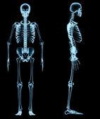 Esqueleto humano bajo los rayos x — Foto de Stock