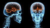 Brain inside skull — Stock Photo