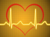 Electrocardiogram, ecg, graph, pulse tracing — Stock Photo
