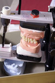 Jaw in the laboratory — Stock Photo