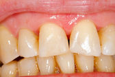 Composite filling tooth treatment — Stock Photo