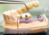 Dental implant head and bridge — Stock Photo