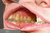 Dental braces on teeth - orthodontic treatment — Stock Photo