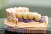 Dental bridge made of porcelain on casting — Stock Photo
