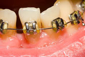 Closing of gap with dental braces — Stock Photo