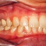 ������, ������: Human teeth